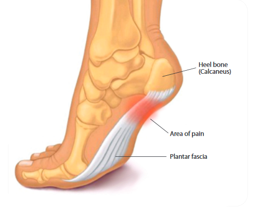Picking the best insoles for plantar fasciitis